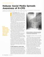 Noburp: Social Media Spreads Awareness of R-CPD